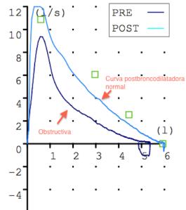 Curva FV Obstructiva